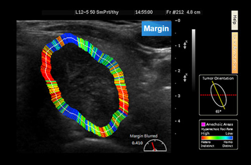 -	Exclusive Analysis Algorithm to Quantify and Visualize Sonographic Features